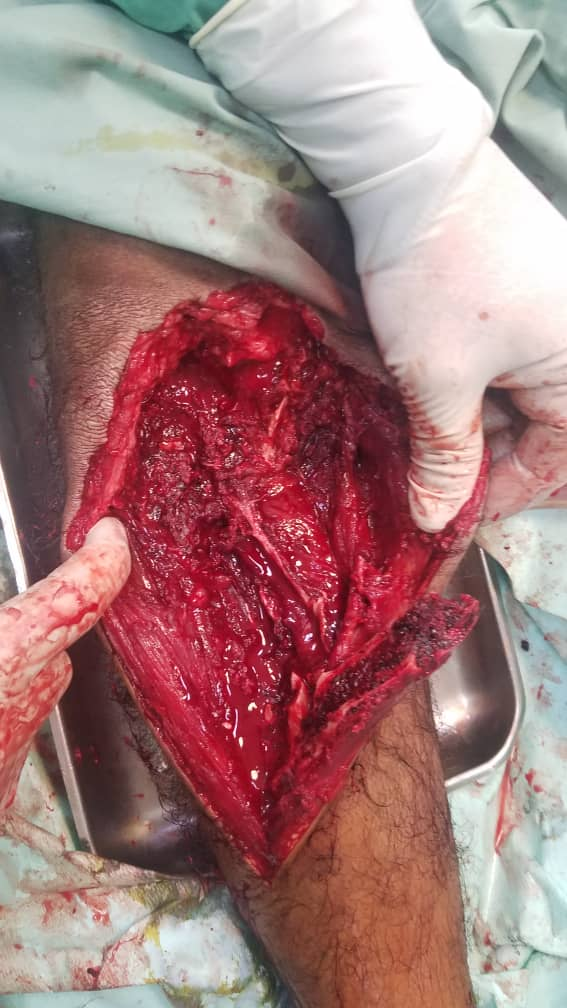 بالتنسيق مع صحية الدعم والإسناد… فريق طبي جنوبي يجري عملية جراحية نوعية لاحد ابطال الجيش الجنوبي